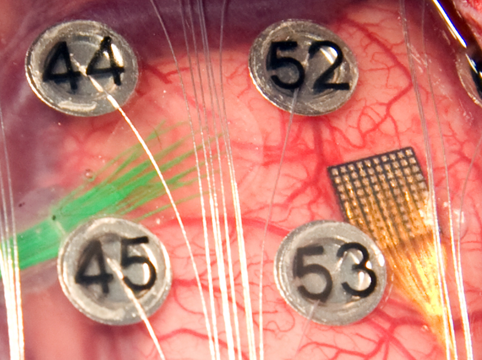 Image of button-like electrodes called micro-ECoG electrodes, attached to the surface of a brain.